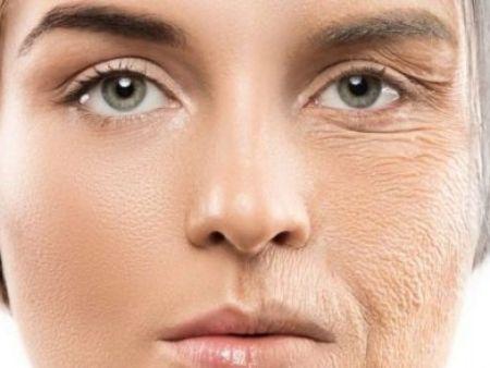 Lofty Skin
